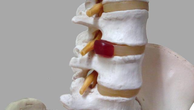 椎間板ヘルニアは腰痛の原因になるのか?