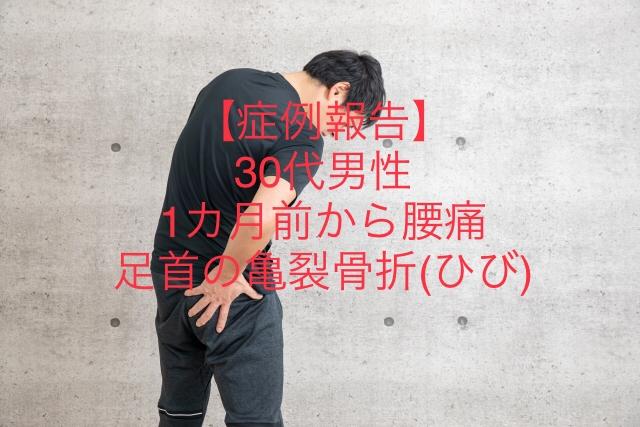 30代男性 腰痛と足首の亀裂骨折(ひび)